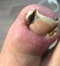 Ingrown Toe nail Photo